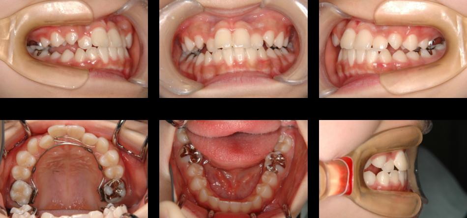 下顎前突_1期治療中