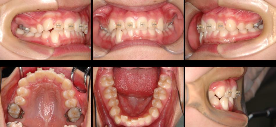 上顎前突‗2期治療開始時