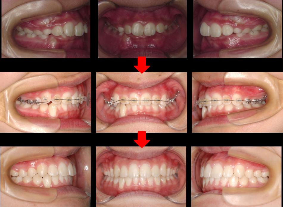 上顎前突‗治療経過