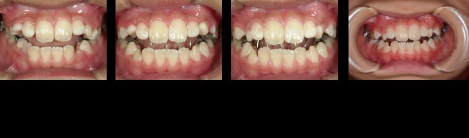 開咬1‗治療経過