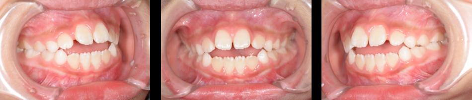開咬2‗初診時